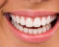 What is poor oral Hygiene?