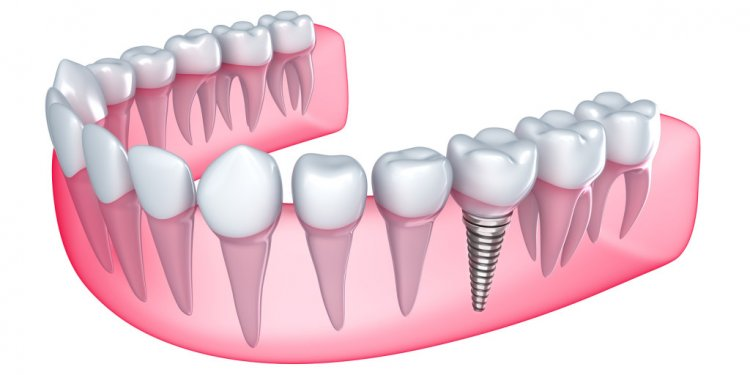 Types of tooth Replacement